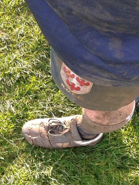 Dirty Rugby Leg